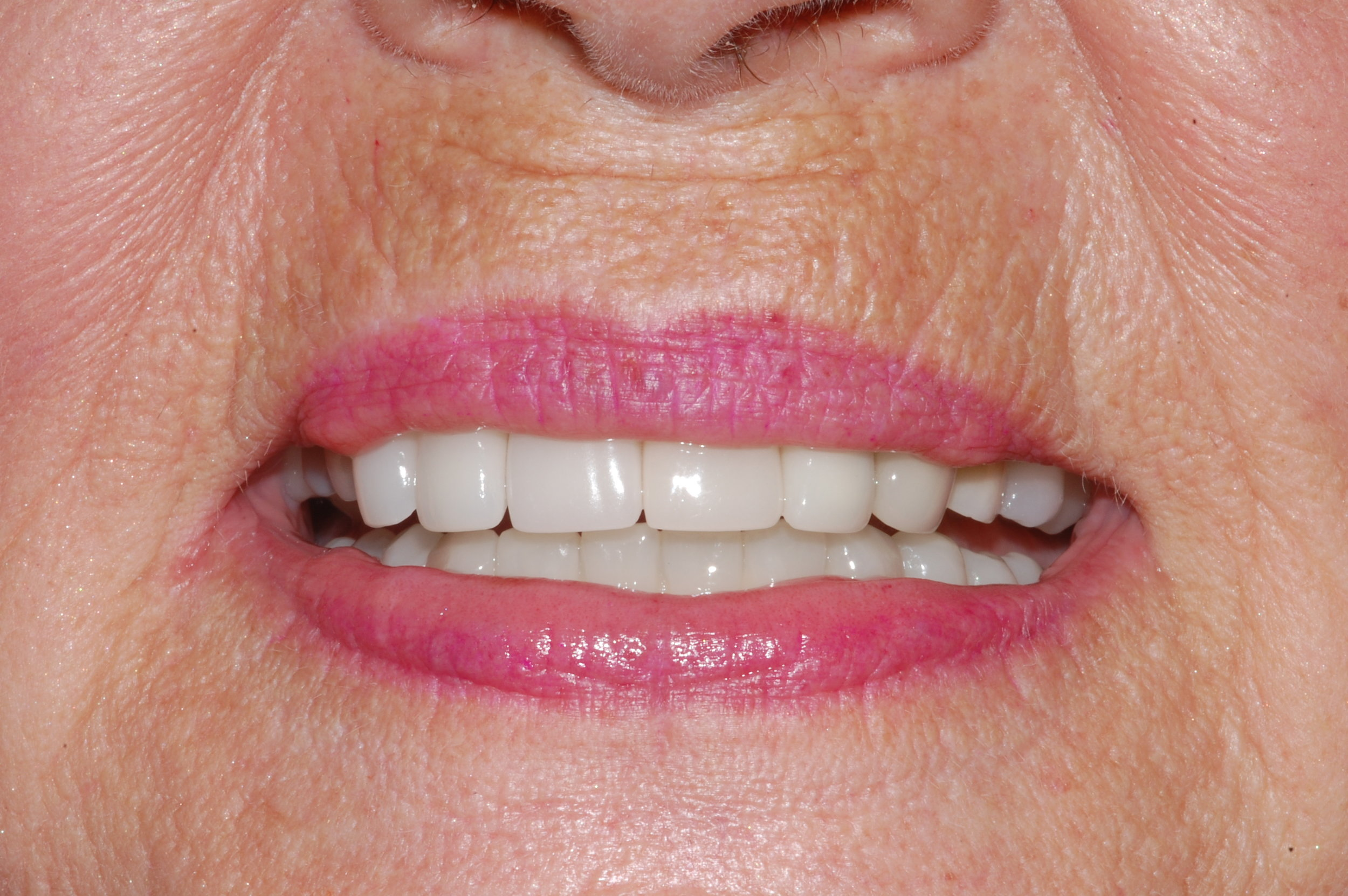 Replacement of Two Teeth with One Implant