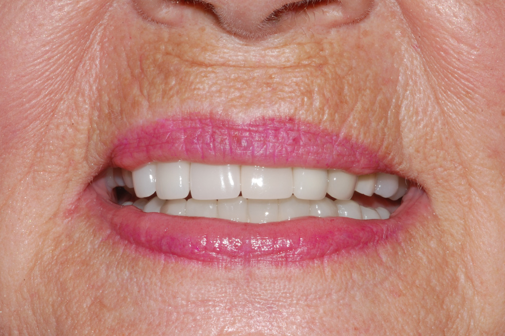 Replace Two Anterior Teeth