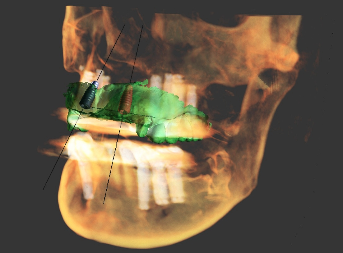 Digital Prosthodontics -