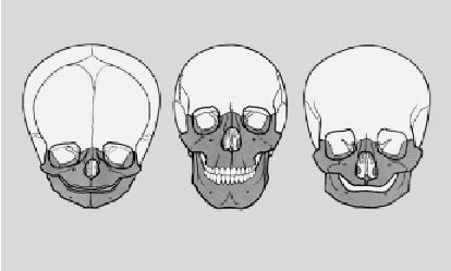 """Fig. 1b:    Formal metamorphoses of the head organization. The initial form is determined by the neurocranium. The limb organization develops as an """"addition"""" to this and recedes again in advanced age, regaining a form corresponding to that of the infantile head. (From:  Waldeyer A. Anatomie des Menschen,  Part 2, 11th edition, de Gruyter, 1974)"""
