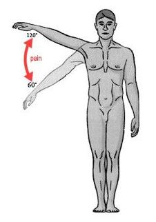 supraspinatus pain.png