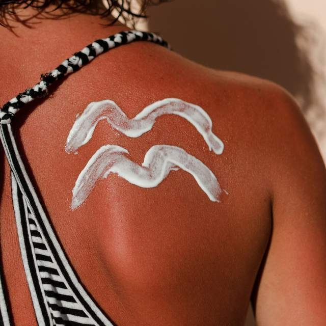 Love Island Fans Express Increasing Concern Over Sunburn - READ FULL ARTICLE