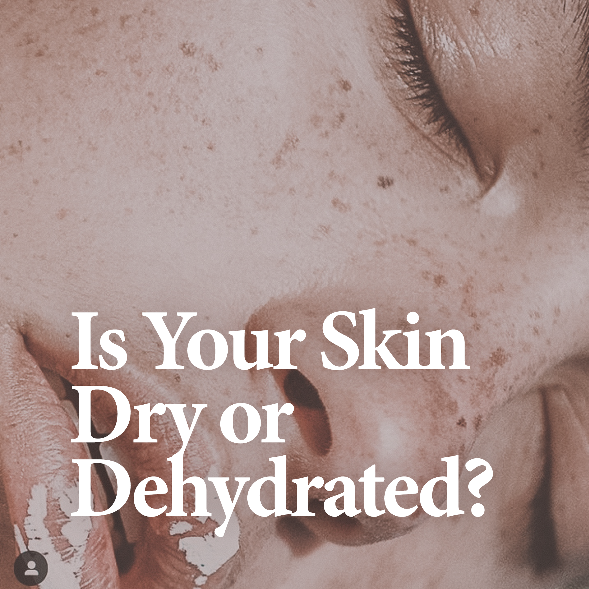 RELATED Discover the difference of having dry skin to having a dehydrated skin concern.