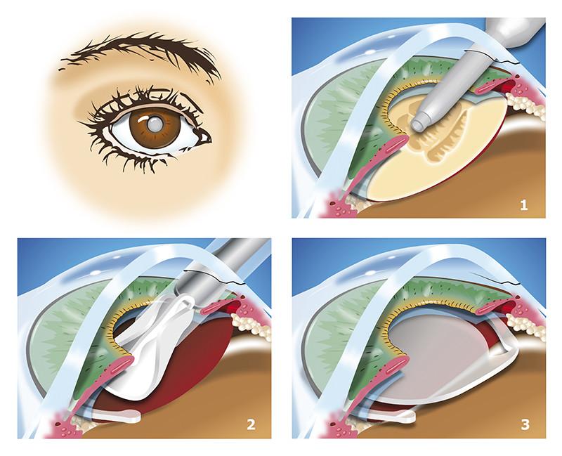 Diferentes pasos de la Cirugía de la Catarata: 1. Facoemulsificación del núcleo del Cristalino previa fractura del mismo. 2. Implante de la lente intraocular. 3 Estado final de la cirugía con la lente implanta en el saco capsular de cristalino ya extraído.