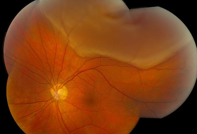 """Desprendimiento de Retina. Puede apreciarse en esta la retina desprendida en forma de """"bolsa"""" en la parte superior de la imagen."""