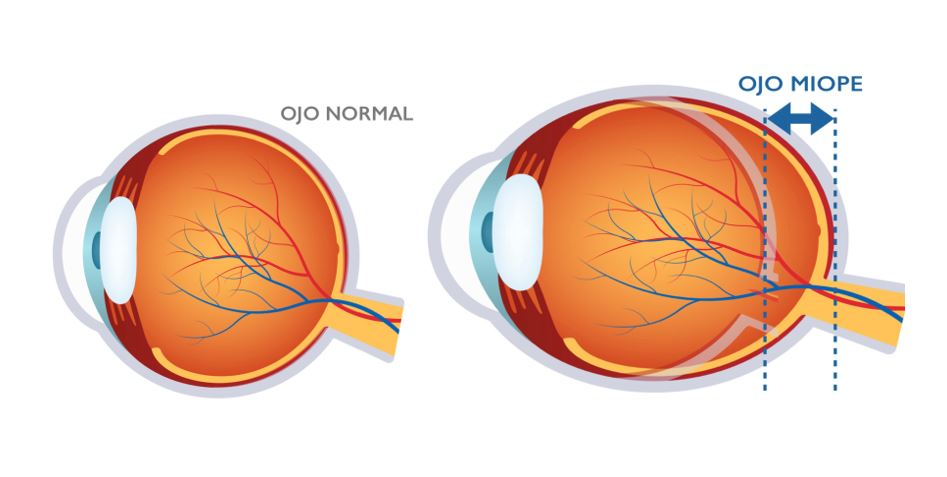 miopie și glaucom)