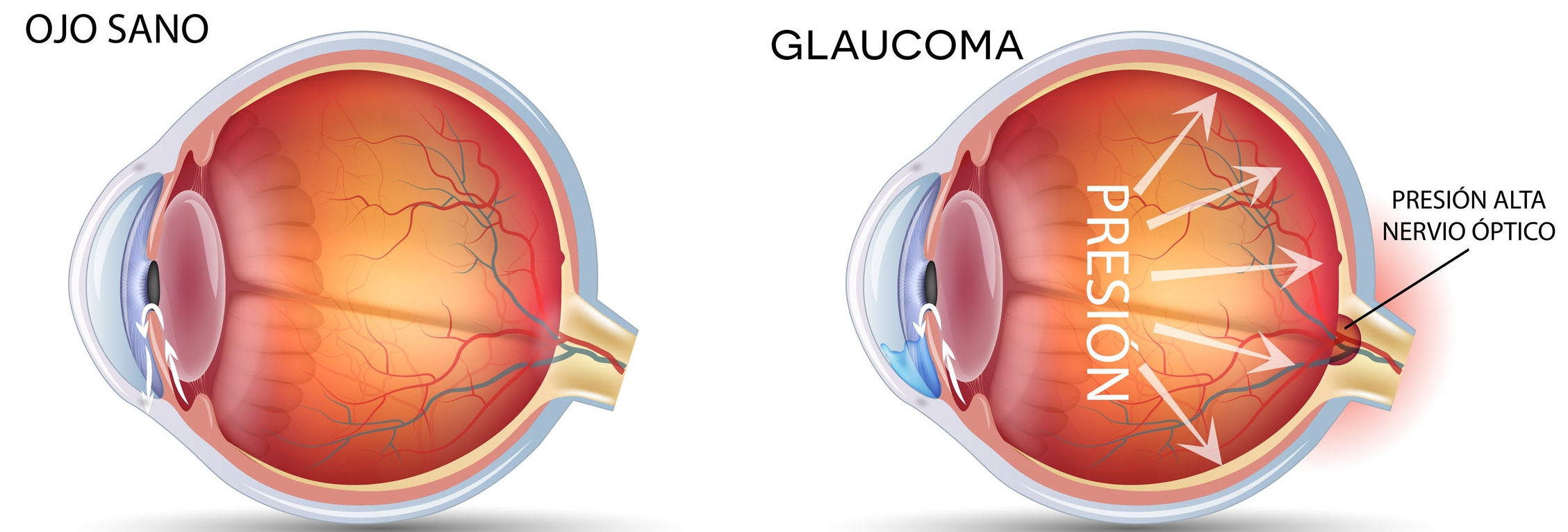 omiq_oftalmologia_medica_glaucoma-1.jpg