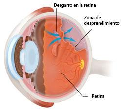Detached_retina-01_250px-Spanish.jpg