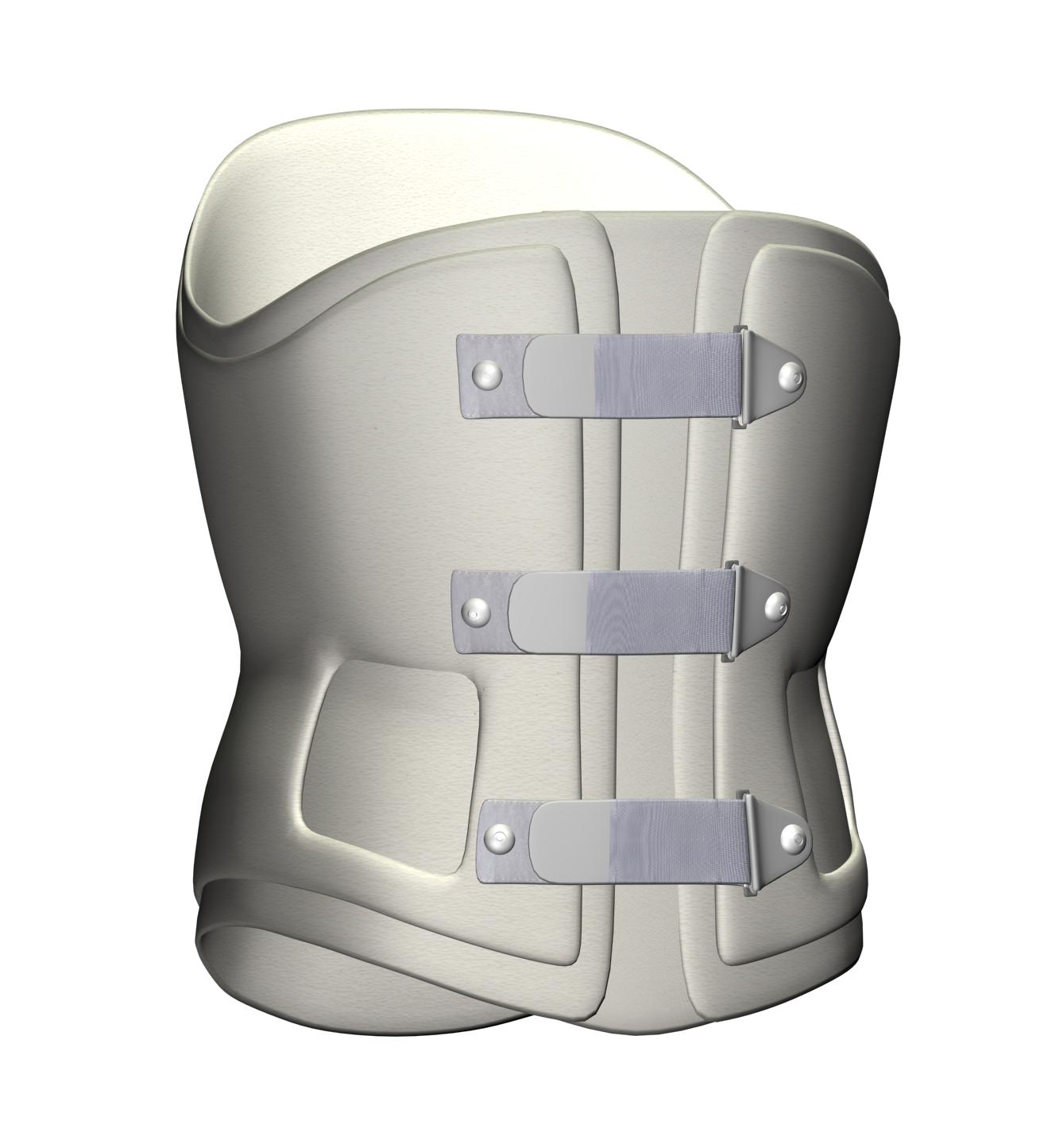 TLSO - LSO External Frame Ortholite Snip.PNG