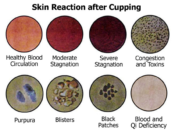 Cupping Skin Reaction .jpg