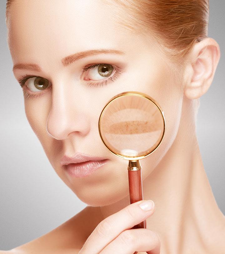 5-17-Tips-To-Remove-Skin-Pigmentation-_234519628.jpg