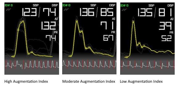bpplus-ai-index-graph.jpg