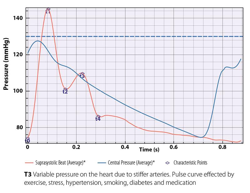 Pulse-curve.jpg