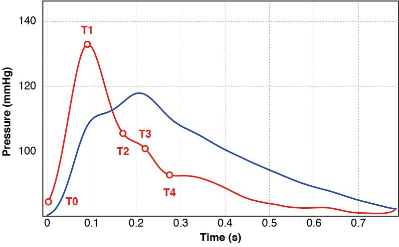 pulse-curve-v2.jpg