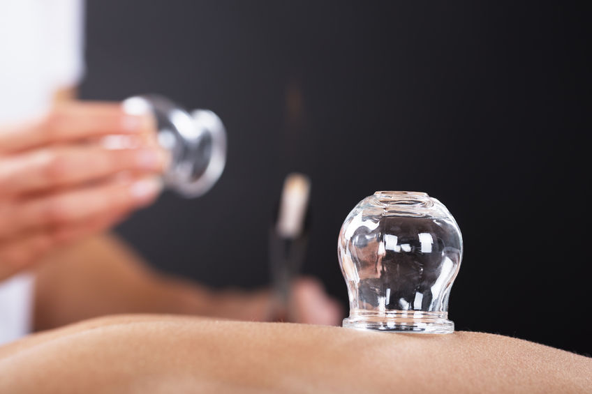 Body Work + Cupping -