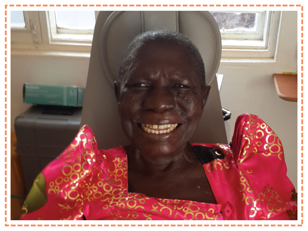 Esereda, Hope Smiles Patient, Uganda