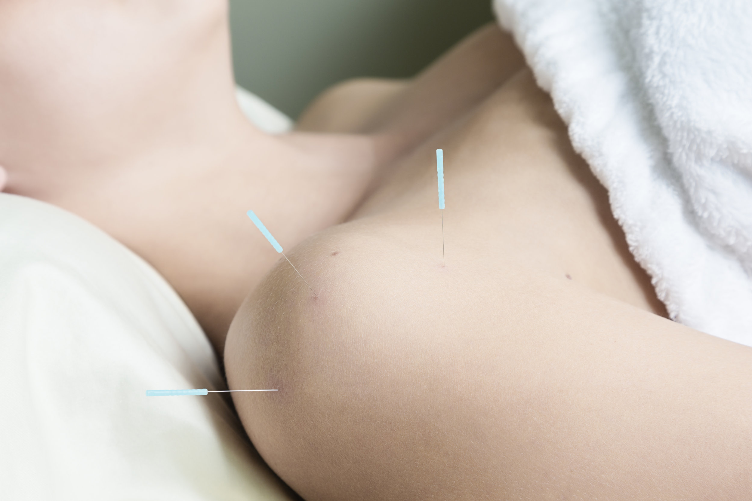 Woman-Getting-Acupuncture-Treatment-176589203_5760x3840 (1).jpeg