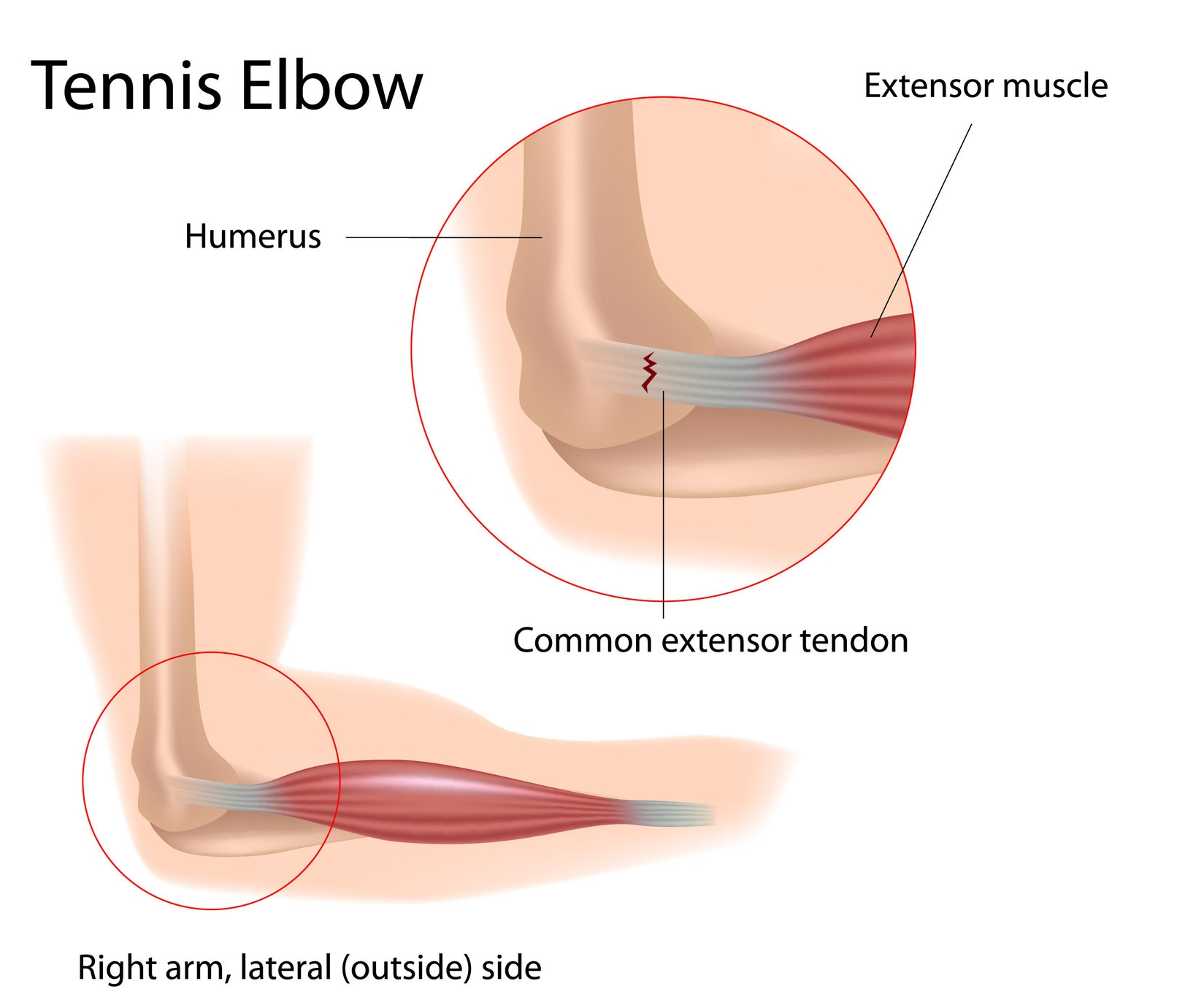Tennis Elbow 7747404 (1).jpg