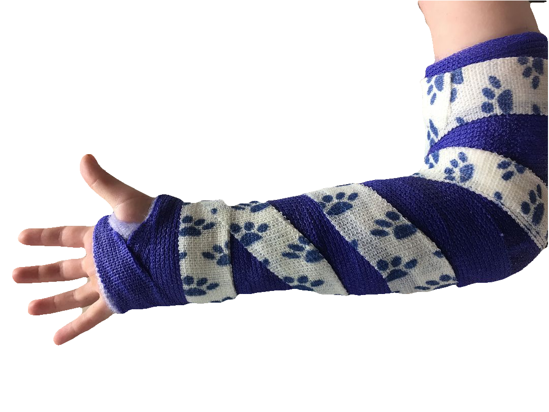 Casts come in all shapes & sizes, depending on the injury.  Click here to view some different casts!
