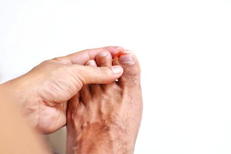 98088729_S_man_foot_toe_ingrown_toe_nail_injury.jpg