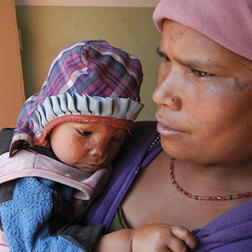 A villager and her child at NCBC for care
