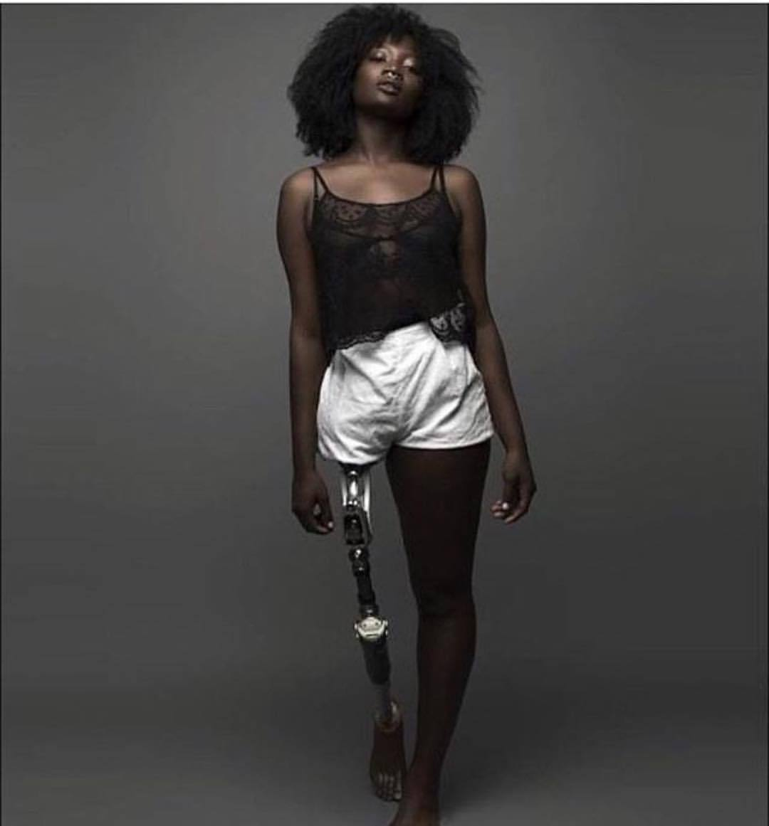 """💕#Repost @mamacaxx  ・・・  RANT : 1 of the very 1st photographs with my prosthetic exposed. When it went around on tumblr, the recurring comment was """"I've never seen a black woman with a prosthetic before"""", A quick google search of prosthetic and you barely see POCs.   About 4 yrs ago I was hanging with a friend when a blind guy happened to be walking by , my friend was staring at him and I knew this stare because people have looked at me this exact same way . with a look of pity my friend said """"I wouldn't want to be blind, it must be sad not to see the world"""" to which I replied """"do you think this world deserves to be seen, don't you think that maybe a blind person sees it better than a pair of eyes could""""   I've been fortunate to know paralympians; work with disabled politicians, activists & deaf people lobbying for their rights, and countless disabled people not only being successful but contributing to society- my goal is to show you images and stories that you wouldn't otherwise encounter and without even knowing it change how you see people like me; because Next time you see an amputee my hope is that you wont approach them with a """"I will pray for you"""" or """"get better soon"""" but you will instantly recognize their potential, not invade their space and therefore will not reach out to """"help"""" without first asking if they need your help. And please if your first sentence starts with """"no offense but…"""" it's best to keep quiet.   That's how images work, they are imprinted in your brain and subconsciously change how you interact with others. Once you've crossed that small bridge then we'll talk about how in some countries disabled children are not allowed to go in public, in others albino children are hunted. we'll talk about how in some societies men with HIV believe they can be cured by having sex with a disabled person and in other countries it is the norm to decide to abort a child that will be born with a disability-but yea baby steps.   I'm not a rebel because I take """