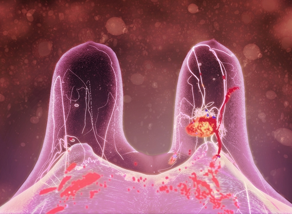 Making a Difference: Breast Cancer Revisted, 2011