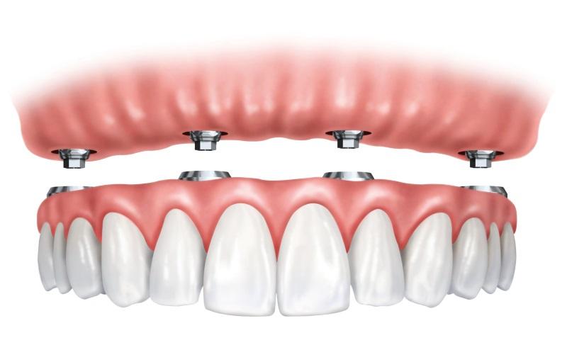Full mouth Dental implants near Villa Park IL