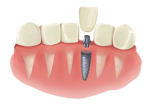 Dental Implant Cost Villa Park Il How Much Is Dental Implant 2021 One Day Handcrafted Smiles
