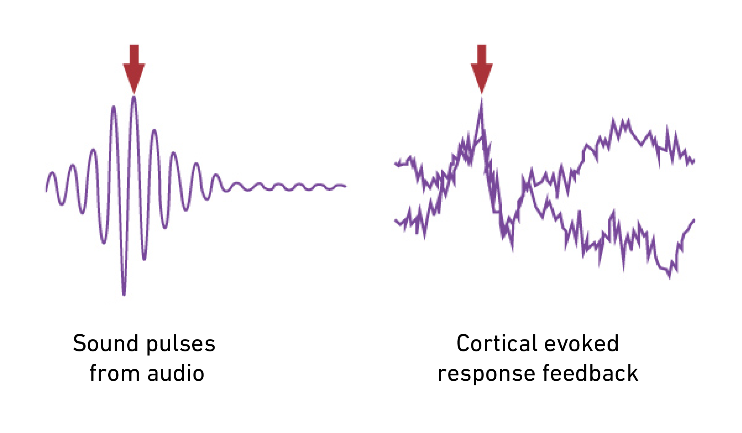 Cortical-Evoked-Response.png