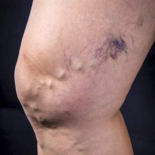 Varicose Vein Treatment - Bulging, unsightly and painful veins are removed with rapid and outstanding results.Vein removal (phlebectomy) allows rapid recovery and visual improvement.After numbing the leg, tiny incisions are made and veins removed.Resume activities without restriction in 24 hours.At 4 weeks: the tiny incisions and the unsightly veins are gone.Patients are ecstatic with results.