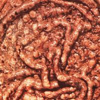 Hairworm -