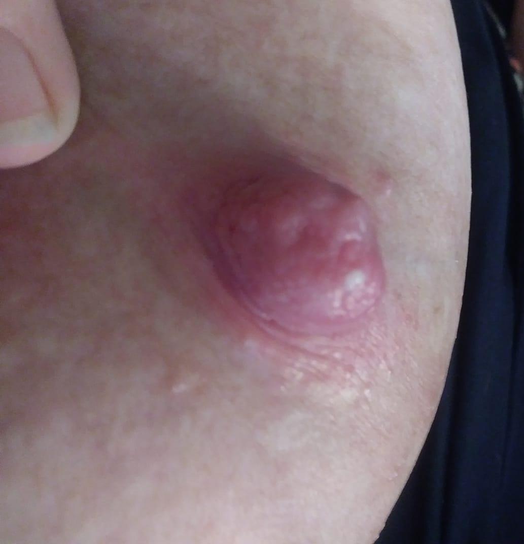 When Breastfeeding Hurts Nipple Blebs Mattos Lactation