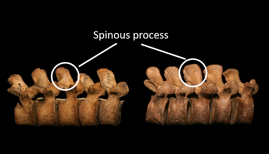 Figure 5: The distance between your spinous processes will affect your backbends  (Photo: Paul Grilley)