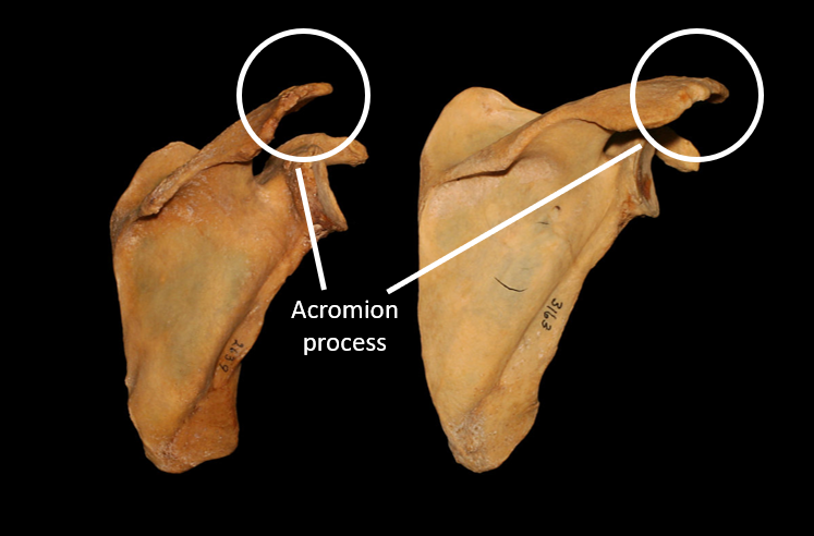 Figure 6: The placement of your acromion (the little roof of your shoulder blade) can impede shoulder movement  (Photo: Paul Grilley)