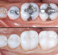 32D-ToothColored-Restoration.jpg