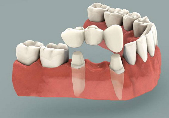 32D-Dental-Bridge.jpg
