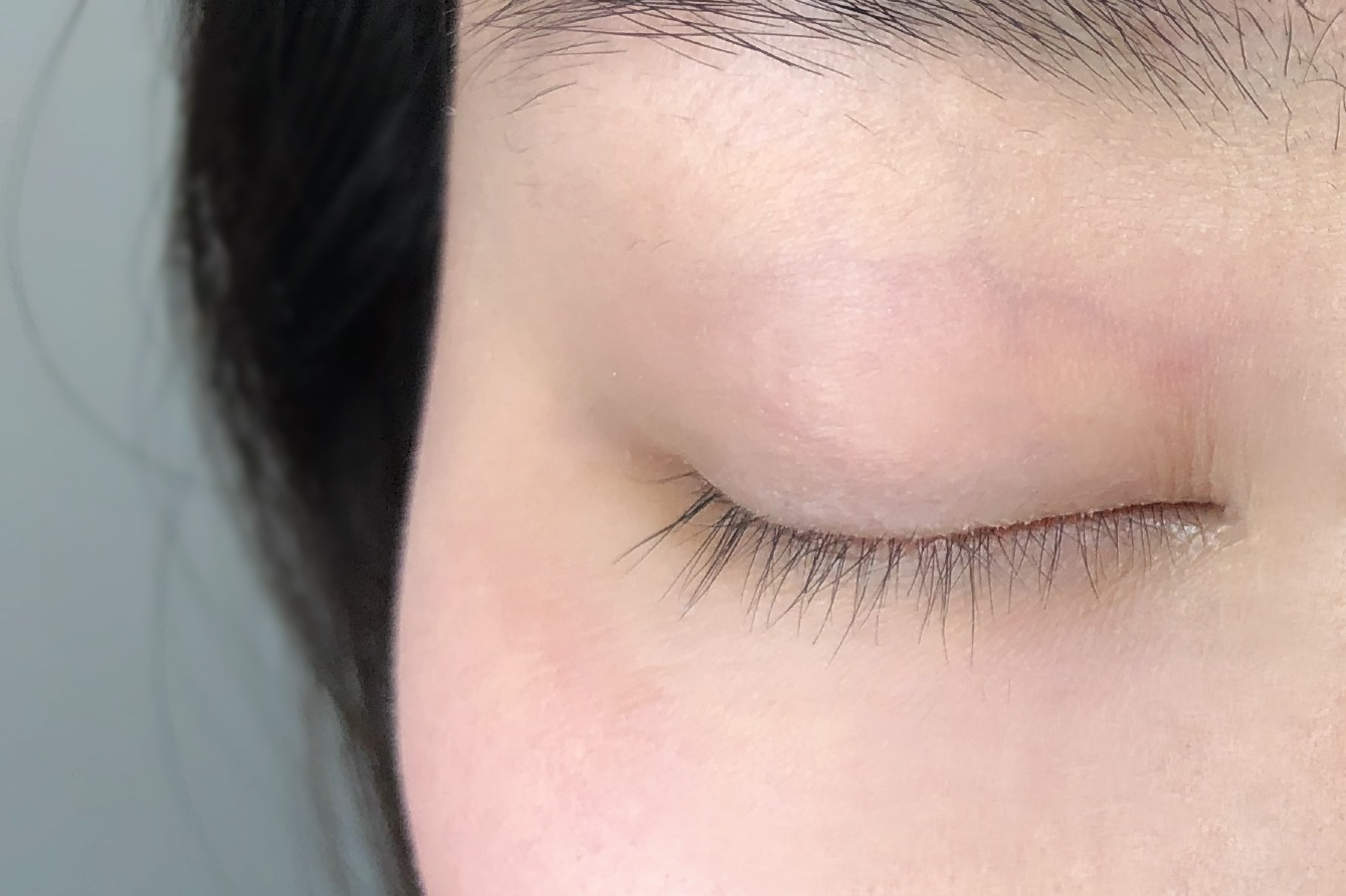 This client came to see us after years of wearing lash extensions that were too heavy for her natural lashes to support. Notice the broken, short lashes and bald spots on her lash line.