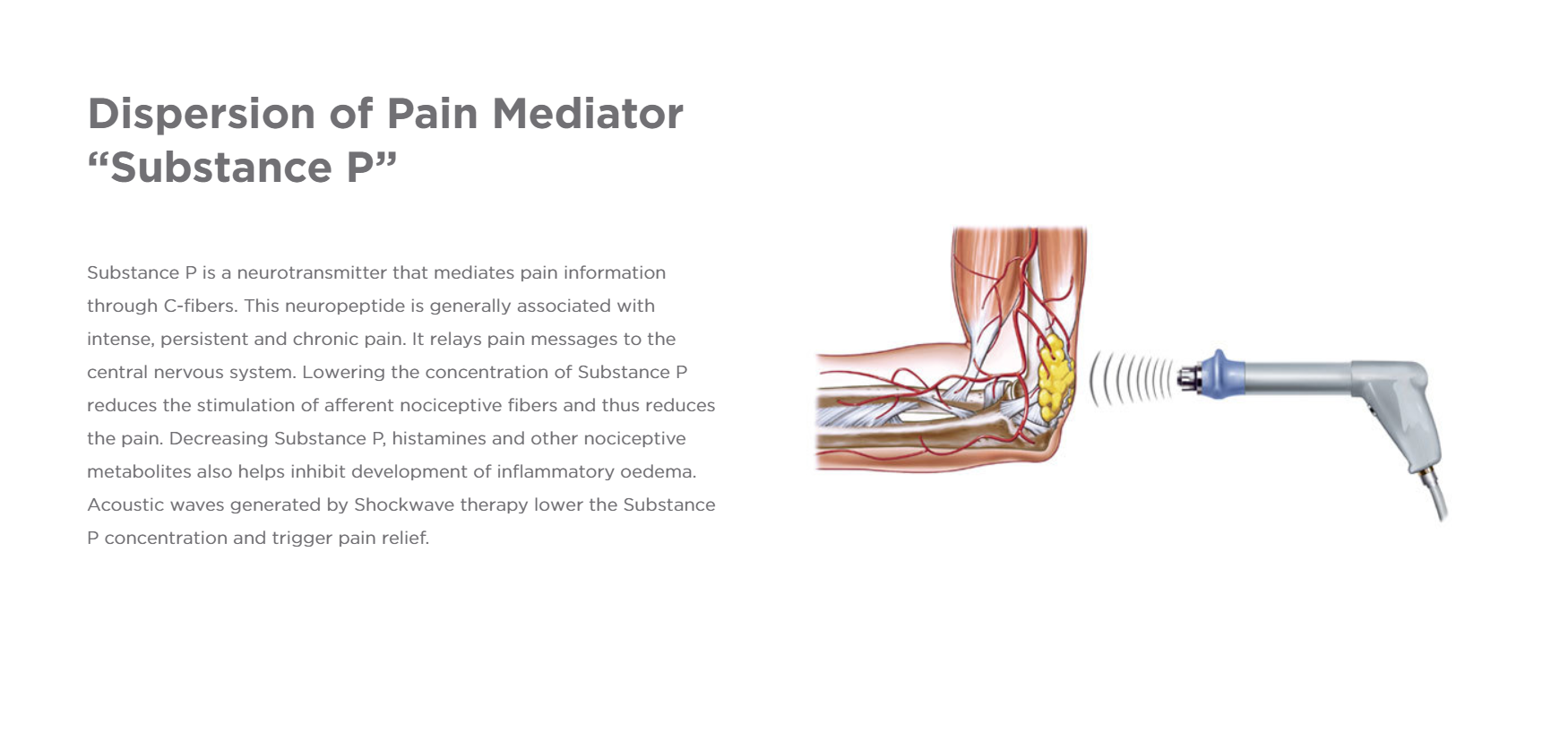 Pain Mediator.PNG
