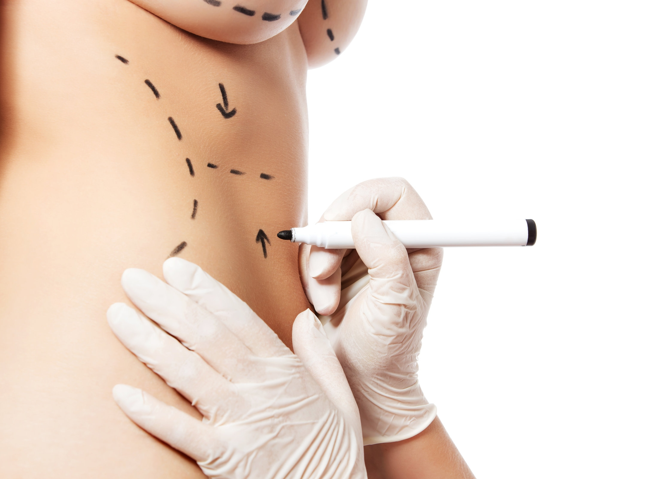 SIA - Cosmetic Reinforcement (SCoRe)  Evaluating the efficacy of DuraSorb Monofilament Mesh when used in reinforcement for abdominoplasty or brachioplasty.