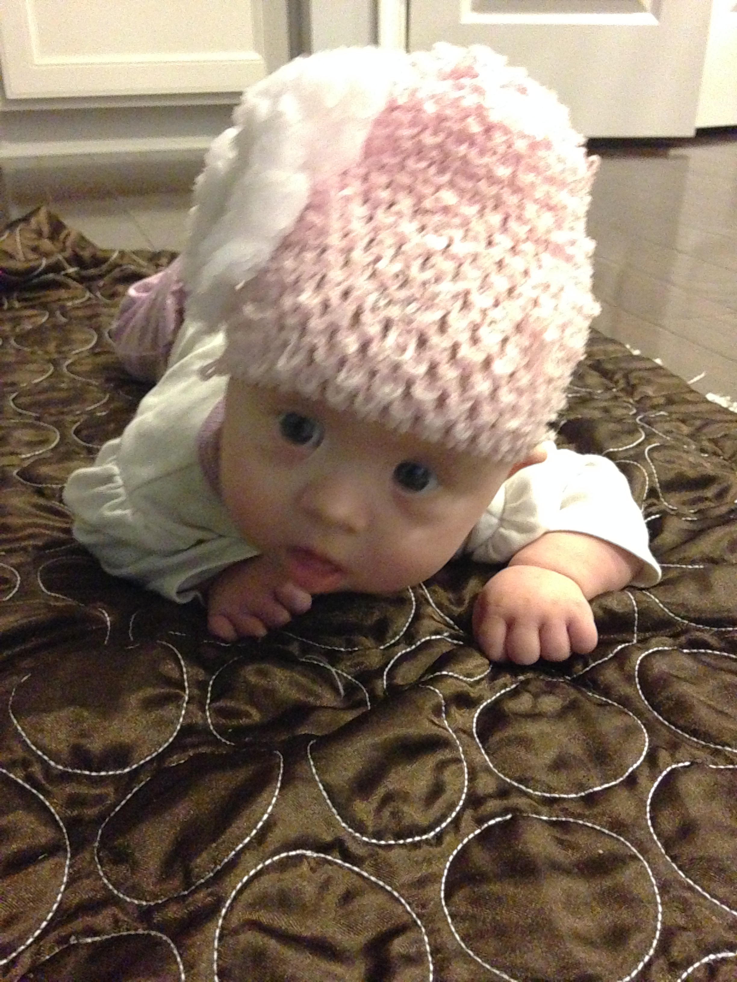 About a month before her Infantile Spasms. Note how small her face is! -