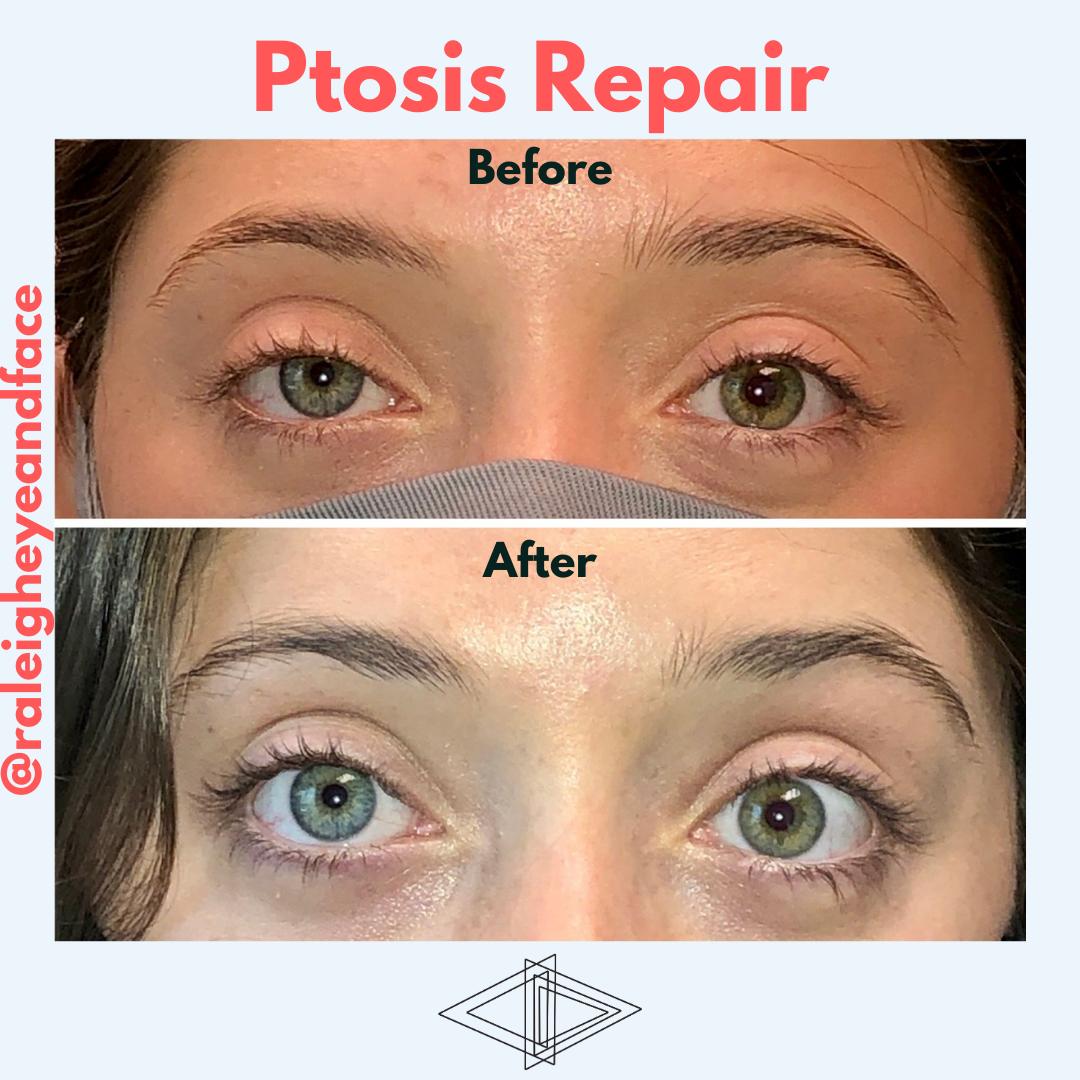 ptosis repair