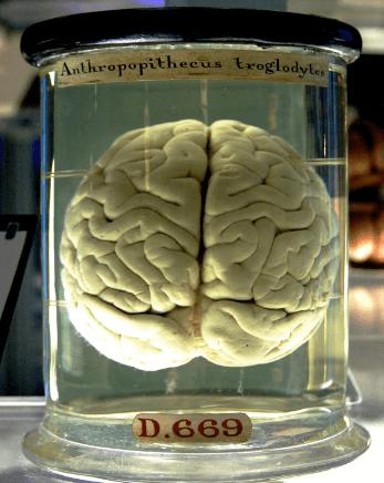 brain_again.png
