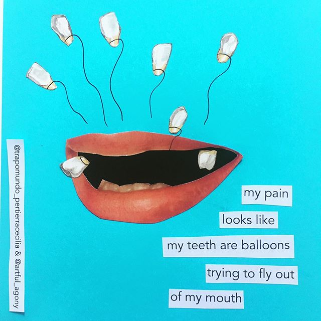 Today's snapshot of pain is from @trapomundo_pertierracecilia who says 'My pain looks like my teeth are balloons trying to fly out of my mouth.' * This is an ongoing project...I'm asking people to answer the question: If you could show people your pain, what would it look like? * If you'd like to participate, just complete the sentence 'My pain has looks like...' below or in a DM and I will choose the best ones illustrate. * Please try to keep your descriptions to one sentence(2 max) * You can see all of the first round at artfulagony.com/snapshots * #pain #snapshotsofpain #mypainlookslike #fibromyalgia #chronicpain #chronicillness #invisibleillness #mecfs #endometriosis #crps #collaboration #analogcollage #collageaday #collageartist #collageart #instaart #artshare #customcollage #share #art #illustration #fibrowarrior #chronicloveclub #collageshare #dailypractice #collageclub #cutandpaste #firecracker #migraine