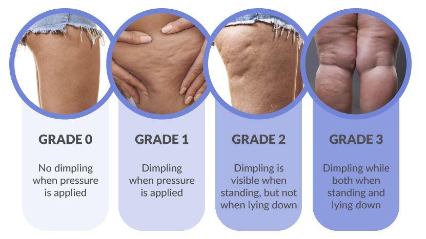 cellulite grades.JPG