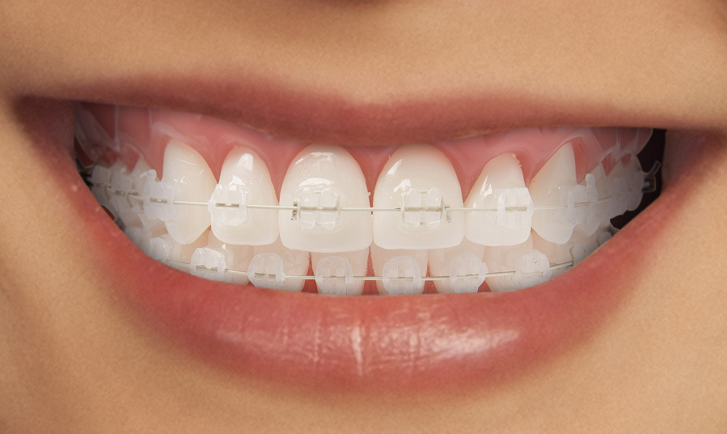 What is Orthodontics? -