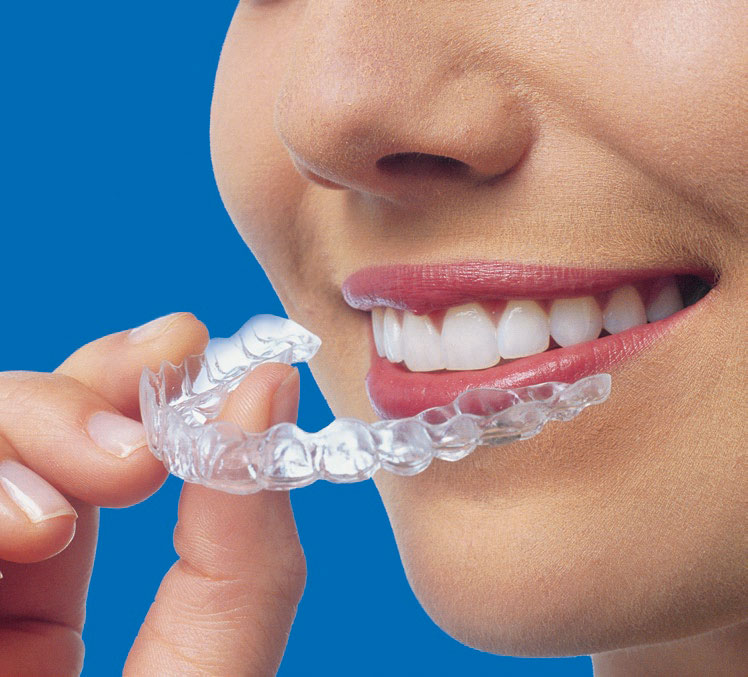 Clear removable aligner Braces -