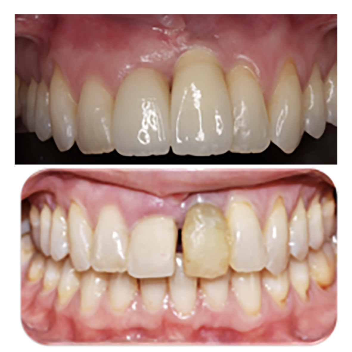 Brace treatment to straighten the teeth, close the gaps and replace with an implant. -