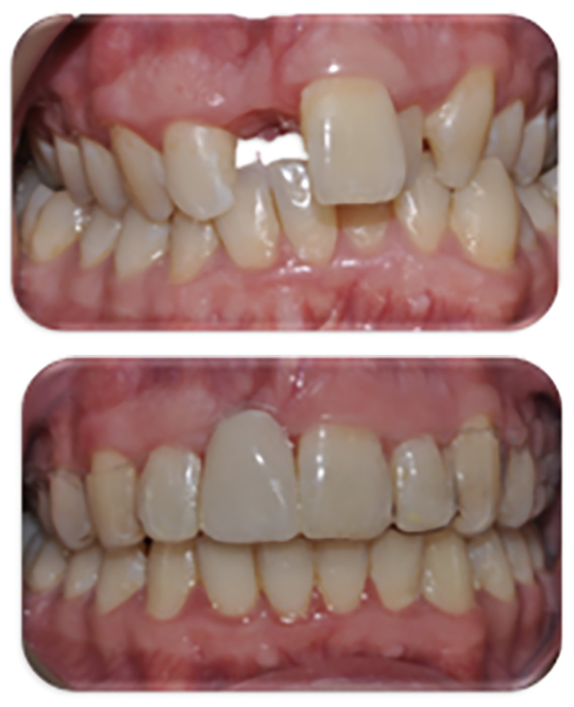 Replacement of the top denture denture with an implant tooth -