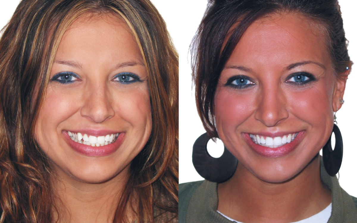 Melissa before and after 6 Month Smiles.